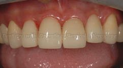 After restoring - Upper teeth