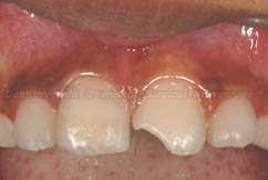 Right central incisor repaired