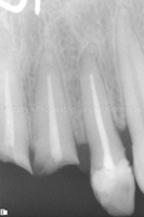 Radiograph-Tooth-to-be-repeat-root-canal-treated
