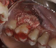 Bone graft mixed with PRGF