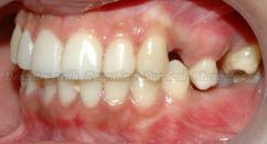 Before treatment – malposition of upper tooth