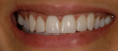 Smile - after treatment