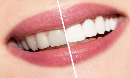 Whitening of Teeth