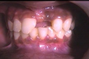 Before treatment - Left central incisor is missing