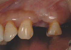 1. Before treatment - there is a tooth missing between two teeth