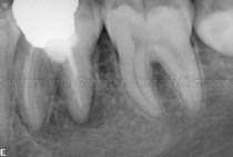 Symptomatic tooth on which repeat root canal treatment is to be performed.