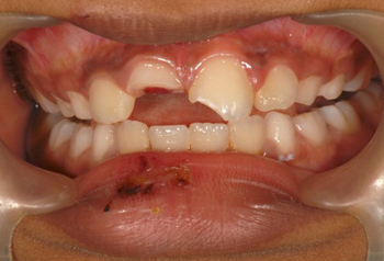 Upper central incisors fractured after trauma