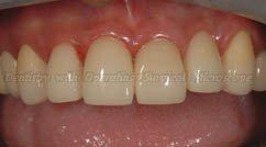 After restoring - Upper teeth