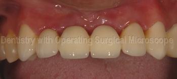 Close up - Full ceramic bridge in the mouth