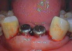 2nd Stage surgery- Placement of healing abutments
