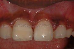 Both teeth repaired