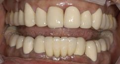 After implant prosthesis and performing restorative treatment on other teeth