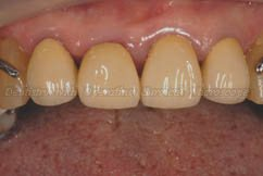 Final Restoration With Aesthetic Crowns