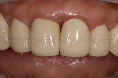Notice the alignment of teeth after treatment
