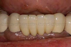 Restorations over the implants in the lower anterior region