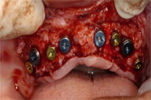 Placement of 8 implants in the upper arch
