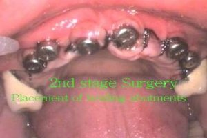 2nd stage surgery - healing abutments