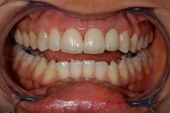 2. After treatment - placement of 3 anterior total ceramic crowns