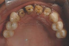 Before treatment -Upper arch - Occlusal view