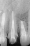 3. Follow up after 20 months- tooth asymptomatic