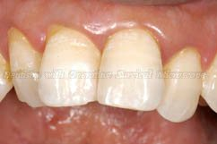 Notice the crooked alignent of teeth due to periodontitis and malocclusion