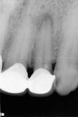 Periapical Cyst in Left lateral Incisor under the fixed prosthesis