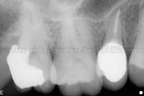 Radiograph - after treatment