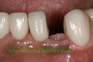 After restoring adjacent teeth