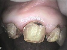 Left central incisor is relatively spared from caries