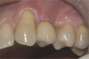Final restoration - Crown placed on implant