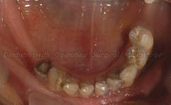 Before treatment - Lower arch - Occlusal view