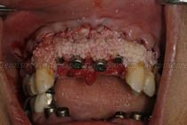 Autologous bone mixed with bone substitute & PRGF placed around implants and premolar region
