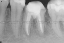 Radiograph before placement of crown