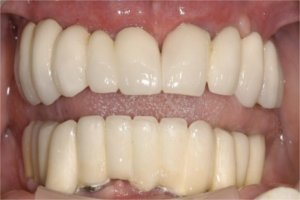 After entire treatment- Patient has upper and lower implant supported fixed bridge prosthesis