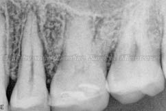 Radiograph after 4 months - showing increased bone
